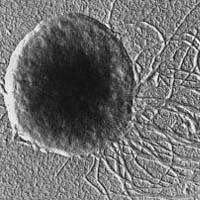 Methanococcus